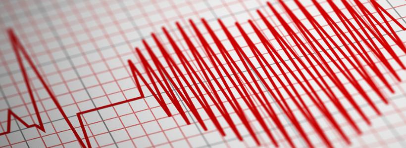 Eletrocardiograma – ECG