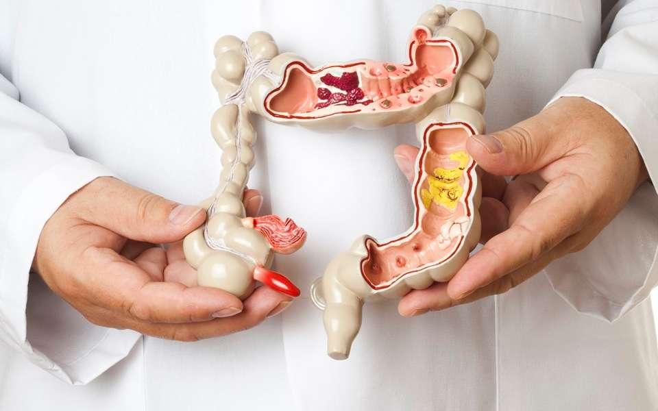Adiamento de diagnóstico do cancro digestivo pode elevar as taxas de mortalidade .